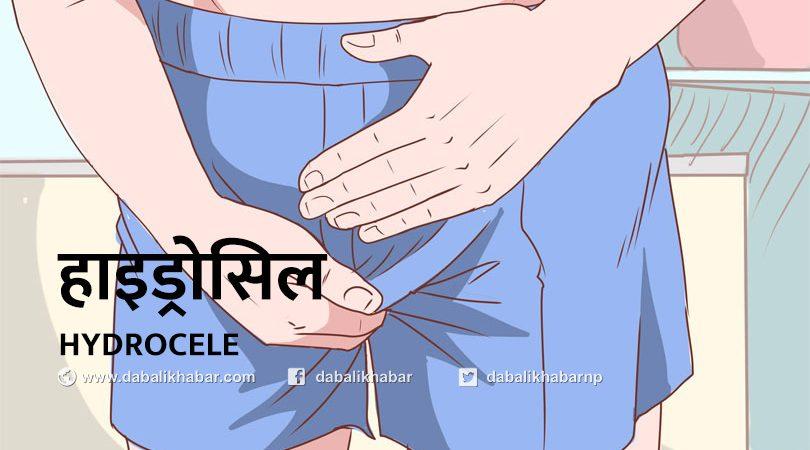 hydrocele nuwakot nepal